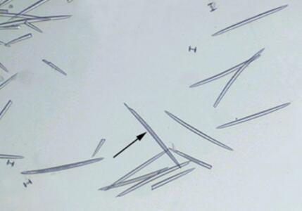 海绵骨针装片(钙质)