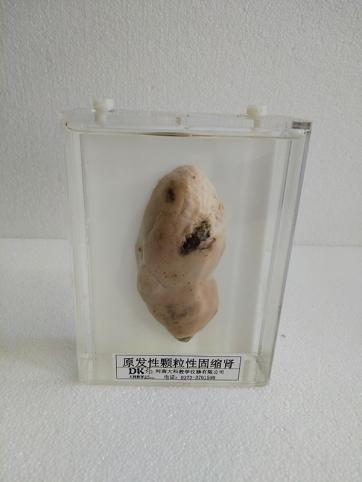 原发性颗粒性固缩肾