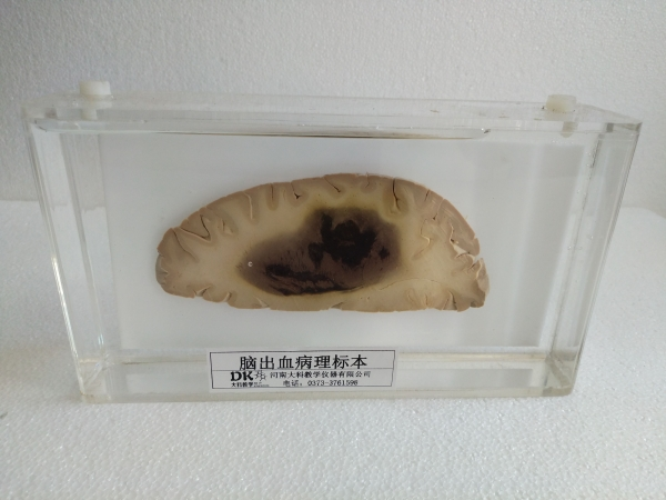 脑出血病理标本
